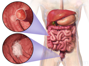 Diagnostic accuracy of FIT in patients urgently referred for colorectal cancer